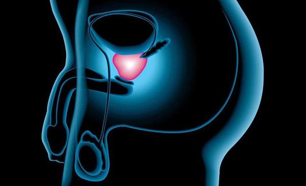 Verdades sobre el cáncer de próstata en República Dominicana
