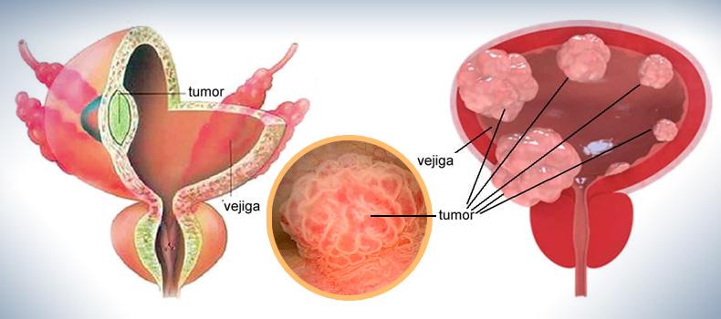 Virus de papiloma humano en hombres causas Cancer de uretra imagenes